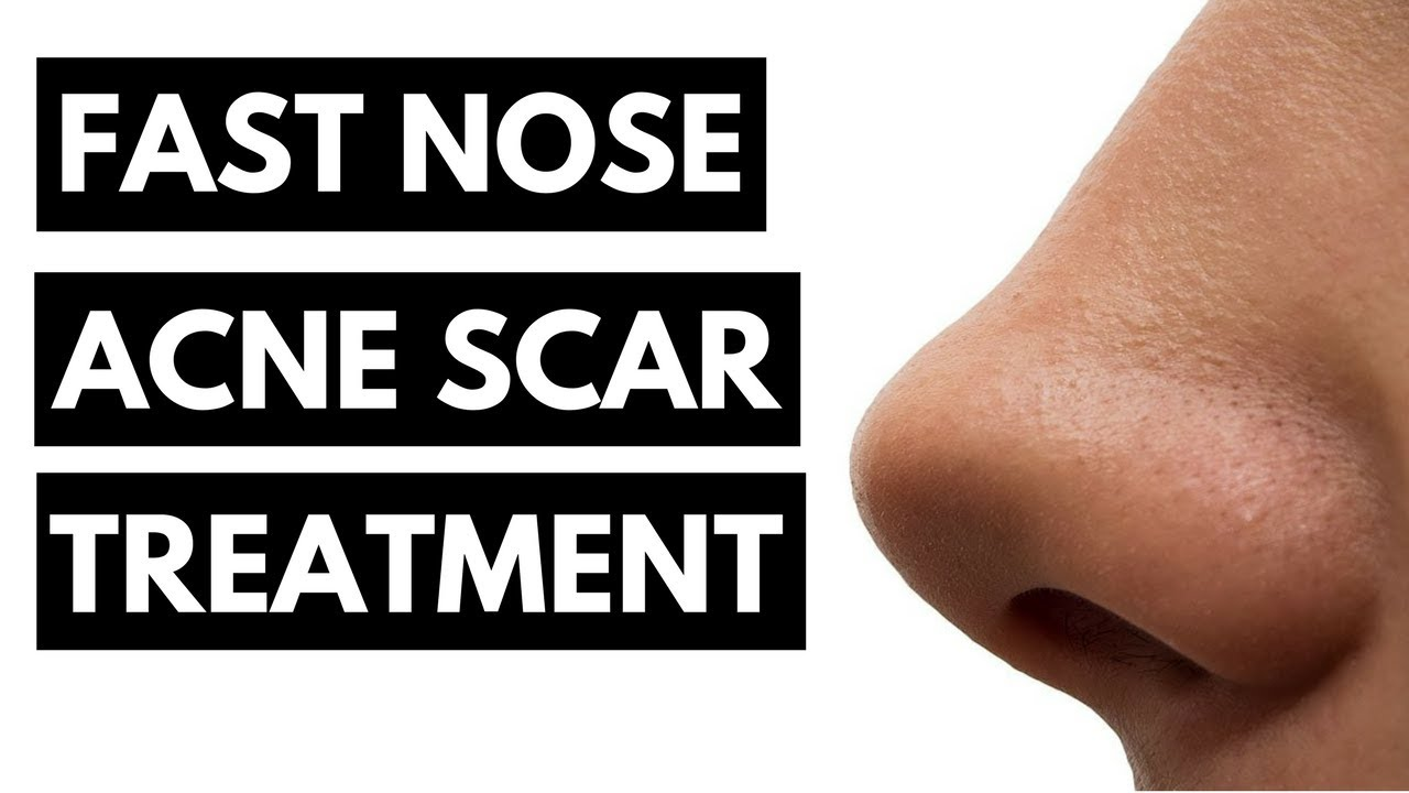 Fast Nose Acne Scar Treatment (100% WORKS!)