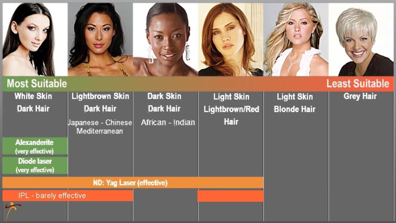 Philadelphia Laser Hair Removal Long Lasting Results