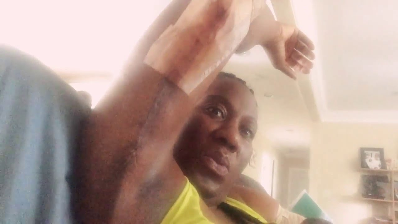 Arm Lift Scar 6 Months : Day post arm lift scar reveal youtube
