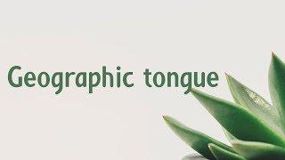 Geographic tongue | Symptoms | Causes | Treatment | Diagnosis