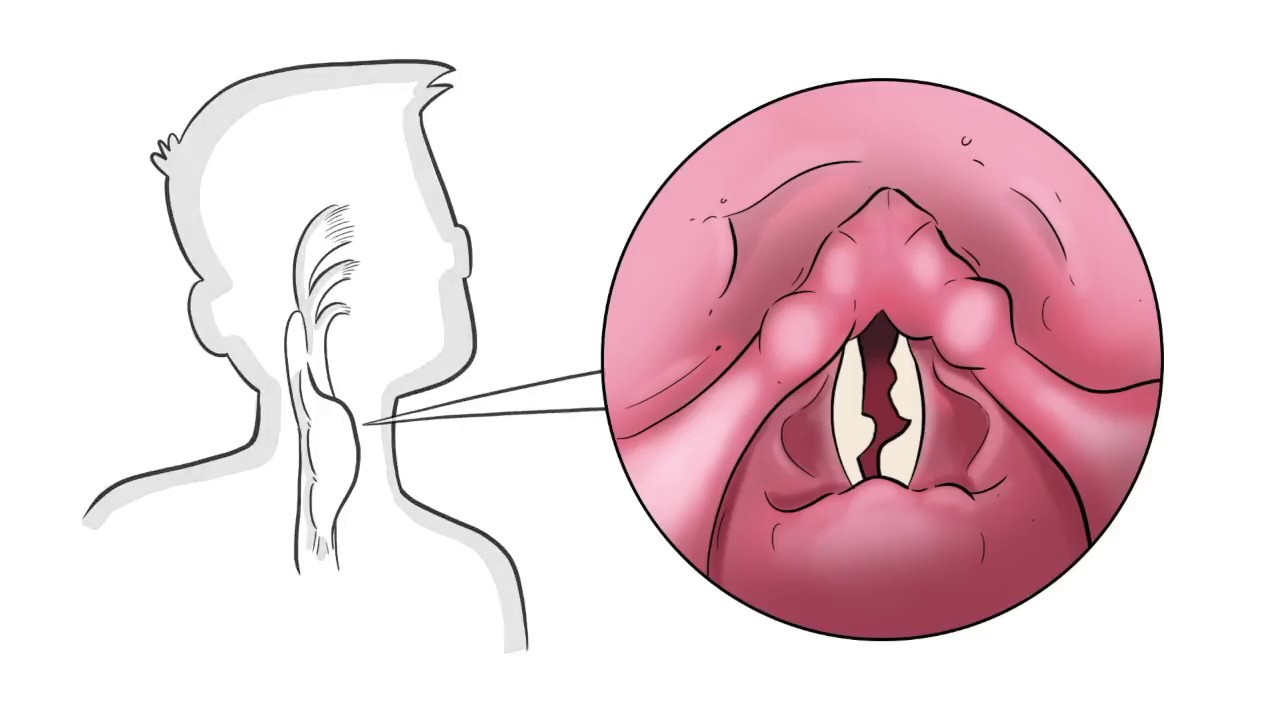 The 4 Underlying Causes Of A Hoarse Voice Youtube
