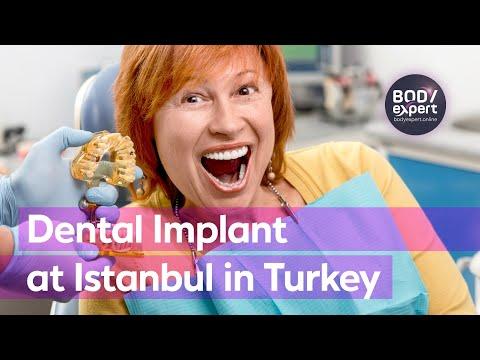 Dental Implant at Istanbul in Turkey