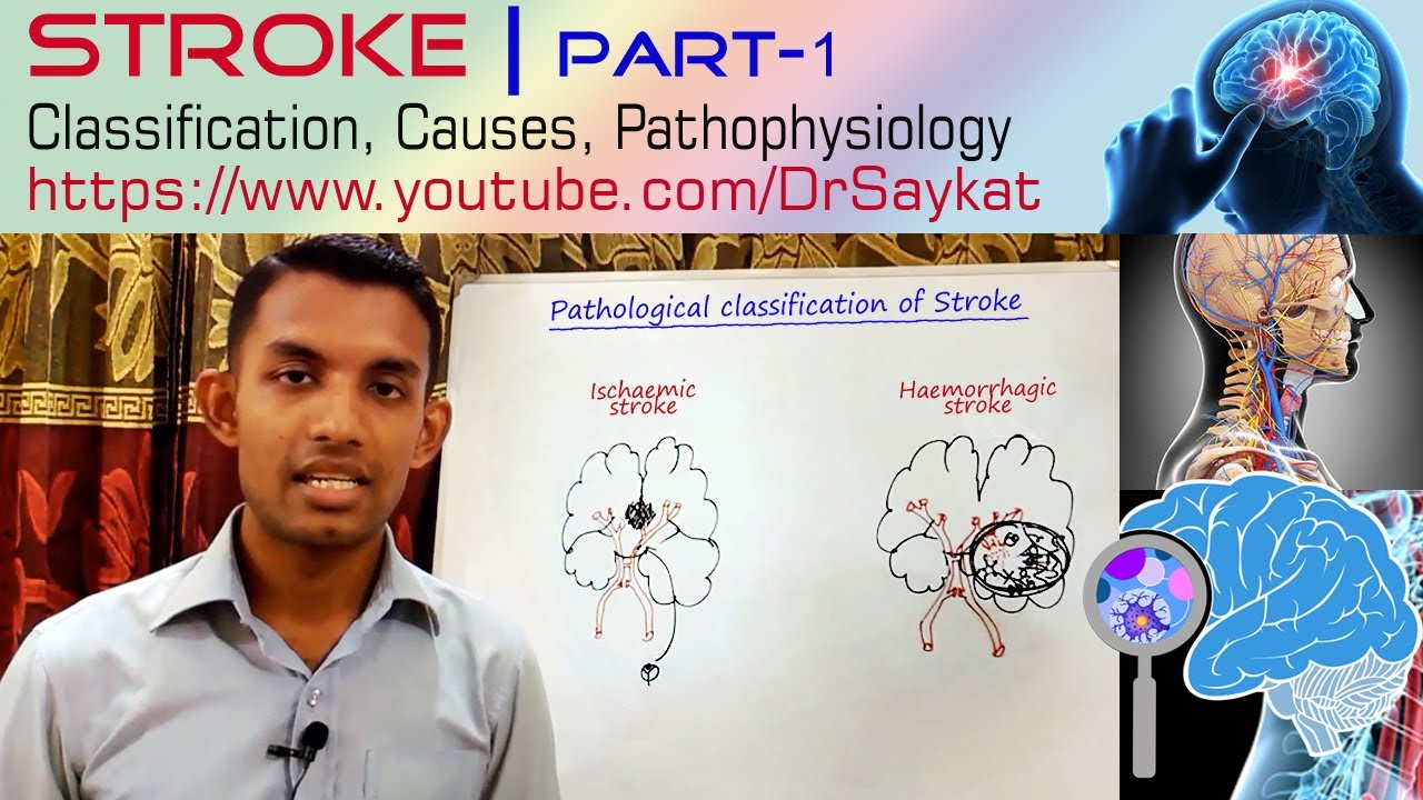 pathophysiology of stroke Each year, more women have strokes than men national stroke association created a set of prevention guidlines just for women to outline unique risk factors of women.
