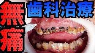 【無痛】歯科治療恐怖症の方のための無痛麻酔[dentistry][ health and wellness][cleaning](針對有齒科治療恐懼癥的患者的無痛麻醉)