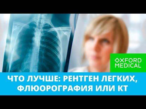 Что лучше: рентген легких, флюорография или КТ