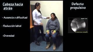 Cambios posturales en diafagia