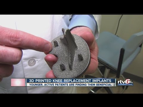 3D-printed knee replacement implants gaining steam