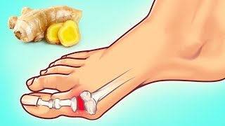 10 Expert Tips on How to Fight Gout Attack
