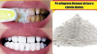 Descubra Como Remover Tártaro E Clarear Os Dente