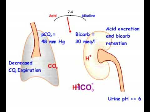 respiratory acidosis compensated - youtube, Skeleton