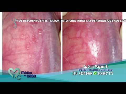 Hpv tumore vescica