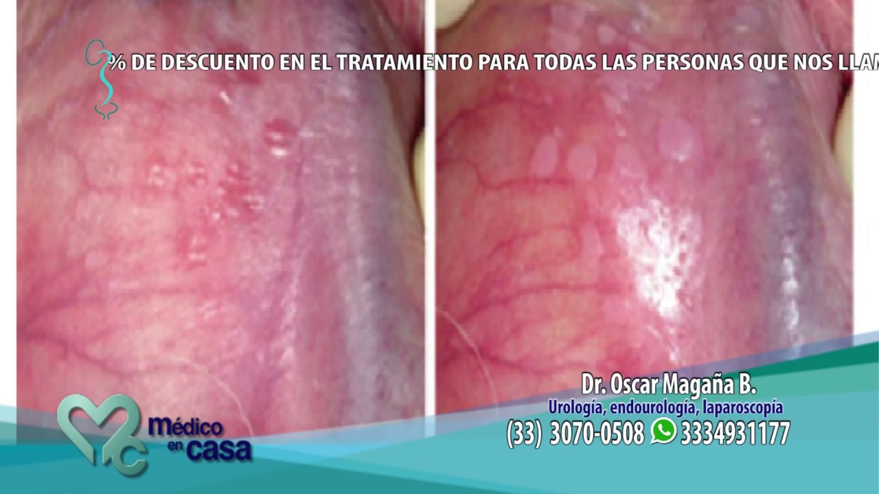 human papillomavirus infection wart removal