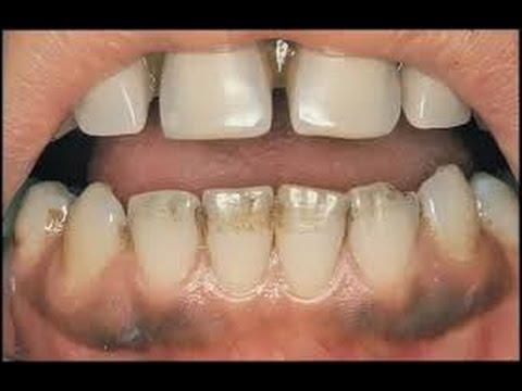 Luar Biasa Inilah 4 Cara Menghilangkan Gigi Hitam Secara Alami