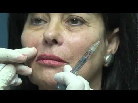 Juvederm Lip Augmentation in Fort Lauderdale