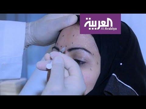 صباح العربية: إذا حقن الفيلر في هذا المكان قد يسبب العمى  - نشر قبل 2 ساعة