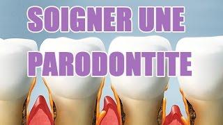 Inflammation des gencives parodontite - Explications sur cette maladie des gencives