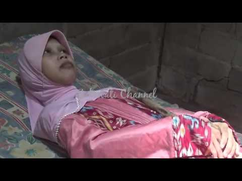 Bamboo Spine disease make a woman's body from Indonesia can't move
