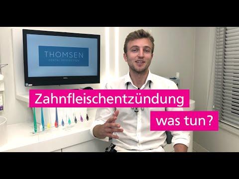 How to Prevent Oral Yeast Infections - Oral Thrushиз YouTube · Длительность: 1 мин53 с