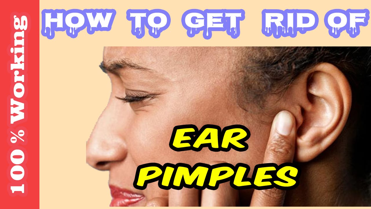 How to get rid of pimples on ear overnight fast home remedies how to get rid of pimples on ear overnight fast home remedies blackheads acne remove youtube ccuart Images