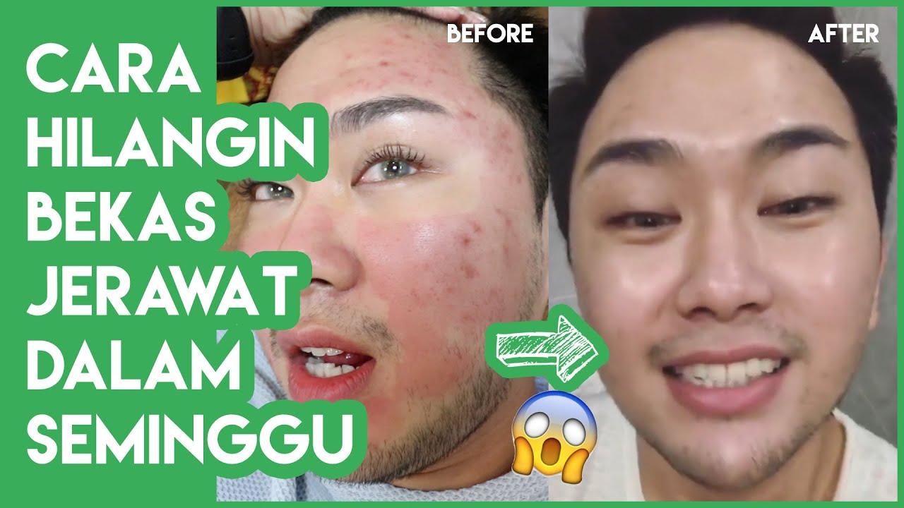 Bekas Jerawat Acne Scars Tuntas Dalam Seminggu Oskincare Laser Pori Vlog Alpha Makeup Youtube