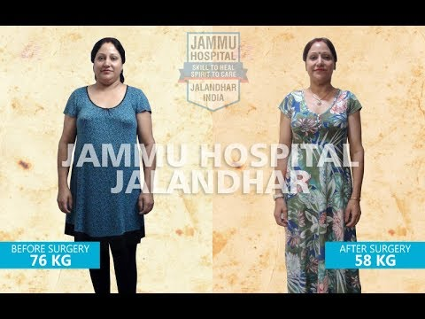 Incredible Results 2 Years After Bariatric Surgery Mini Gastric