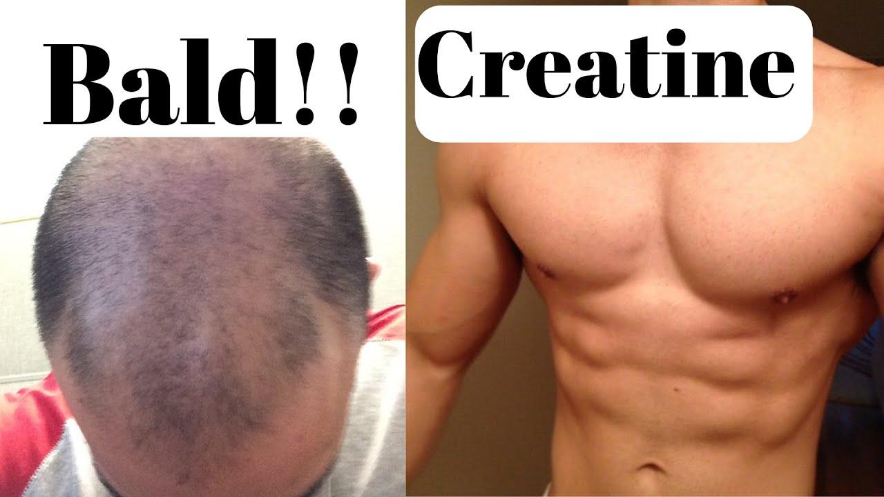 E A A Ef B Fdoes Creatine Cause Hair Loss Youtube