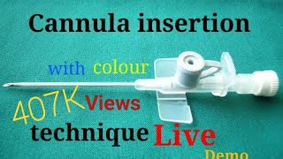 Cannulation insertion technique(Hindi)