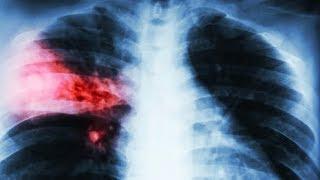 Четвертый смертельный случай от нового коронавируса зафиксирован в Китае