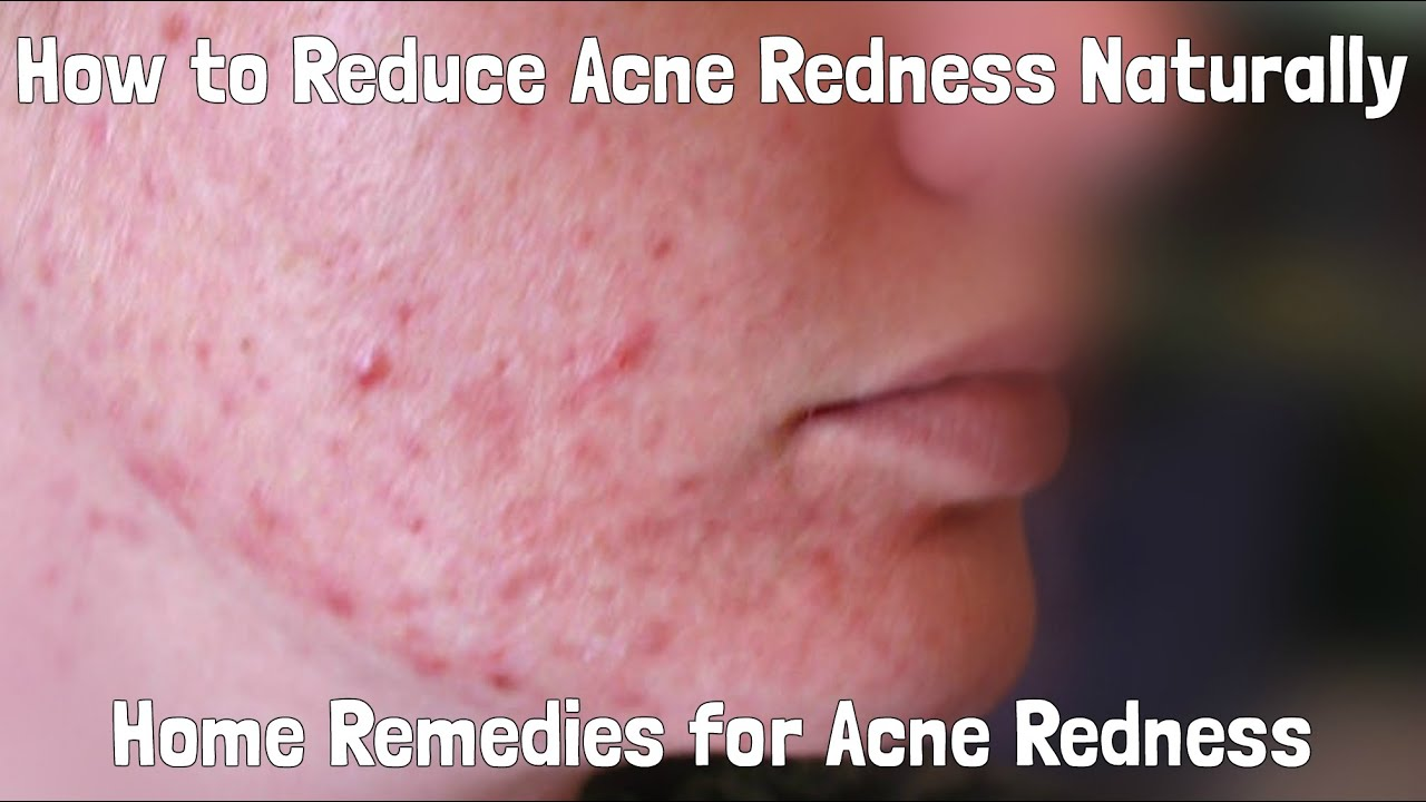 How To Reduce Redness Of Acne