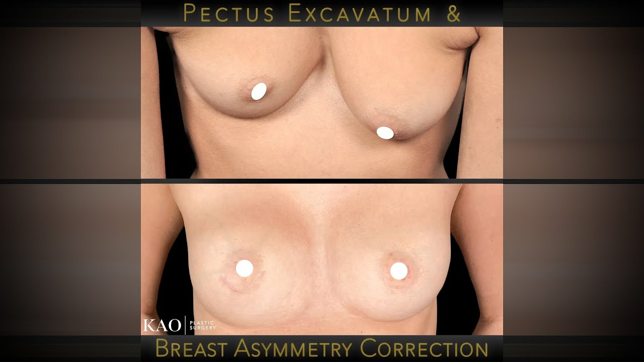 Kao Plastic Surgery - Pectus Excavatum and Breast Asymmetry Reconstruction - Before & After Results