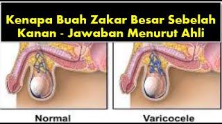 Testis besar tapi tidak sakit adalah tanda-tanda Tumor Testis.