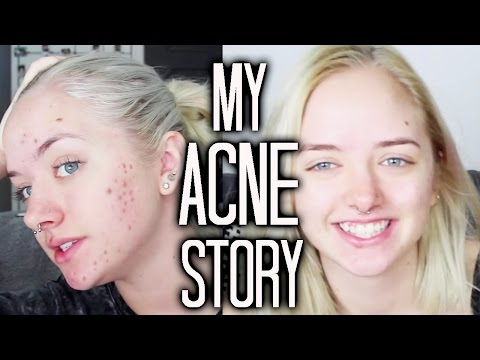 my-acne-story-|-maddi-bragg-|-how-to-get-rid-of-acne