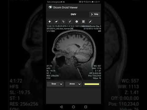 Dicom Viewer for Android