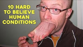 10 Hard To Believe Human Conditions