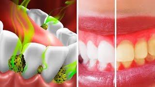 Ağzınızdaki Bakterileri Öldürmenin ve Kötü Kokuyu Gidermenin 10 Yolu