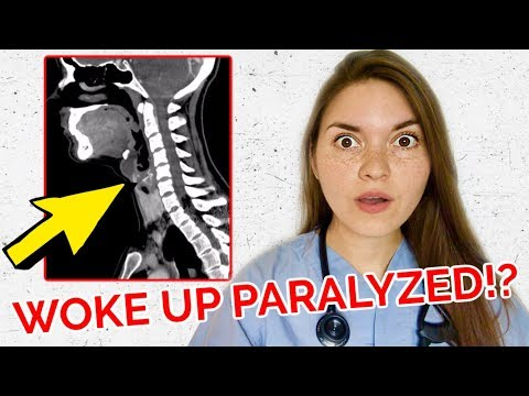 28 YEAR OLD PARALYZED IN HIS SLEEP!! Real Medical Case