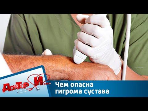 Чем опасна гигрома сустава | Доктор И