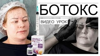 Ботокс видео урок - подсчет единиц, определение зон введения препарата.