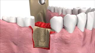 Dental Implant treatment In Udaipur - Best dentist for Implants In India.
