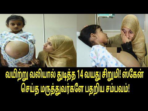 வயிற்று வலியால் துடித்த சிறுமி! ஸ்கேன் செய்த மருத்துவர்களே பதறிய சம்பவம்! | Tamil Trending