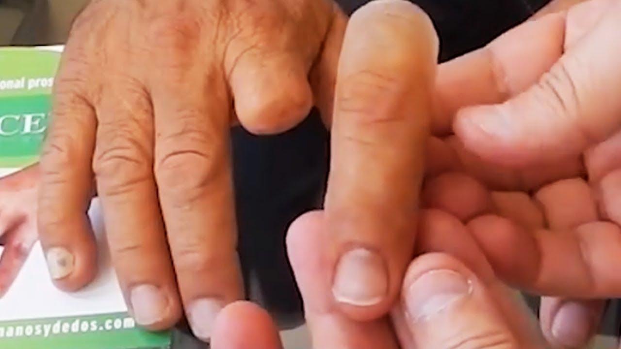 Temporary prosthesis