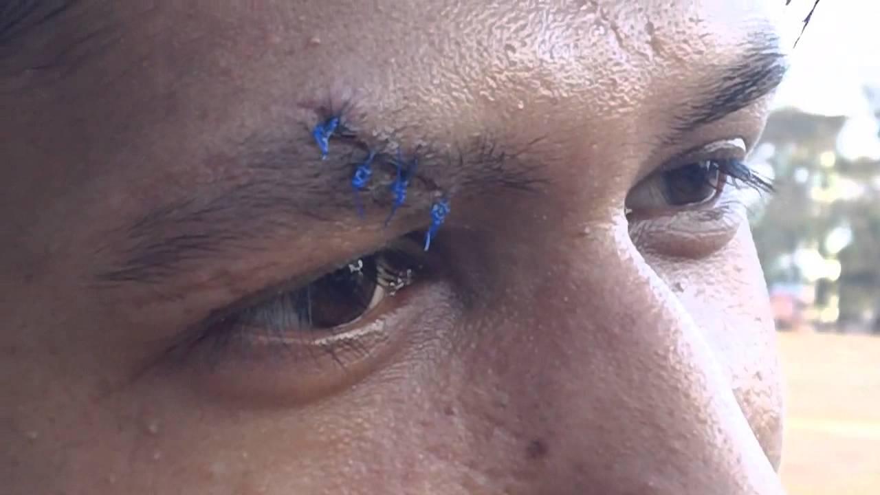 Eyebrow Cut Stitch Blue Catgut Youtube