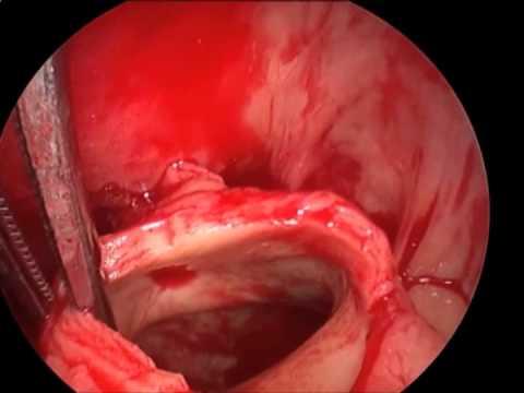 Massive Pulmonary Embolus