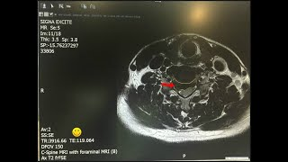 FCST 생기나라 - 목디스크 목통증 치료 2019.6…