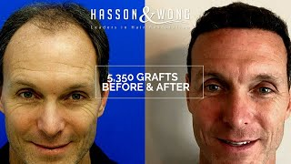 Hasson and Wong Testimonial | 5350 Grafts Hair Transplant Surgery