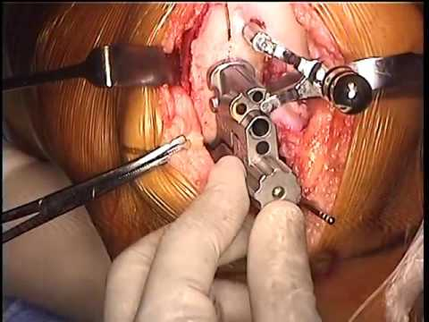 Partial Knee Replacement >> Partial Knee Replacement