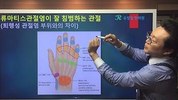 류마티스관절염(RA)와 퇴행성관절염(OA)의 차이 : 손가락부위