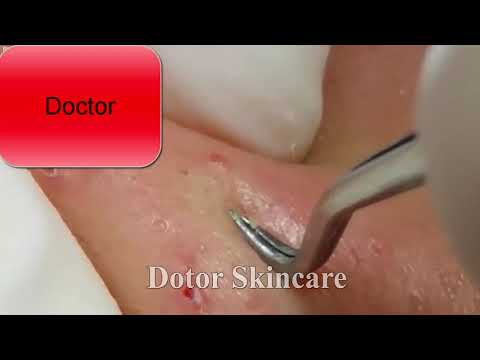 Cystic Acne Pimples & Whiteheads Extraction On Face Acne Treatmen (Part6)