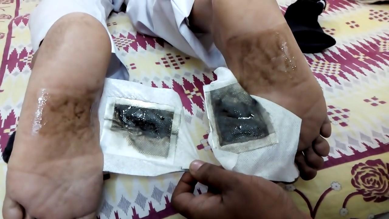 """Résultat de recherche d'images pour """"foot detox patchs"""""""