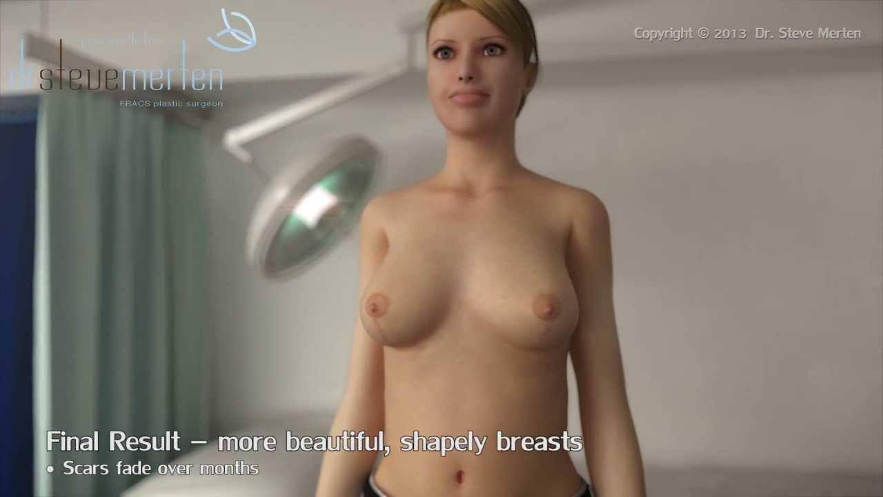 short scar breast reduction animation in sydney au - dr. steve